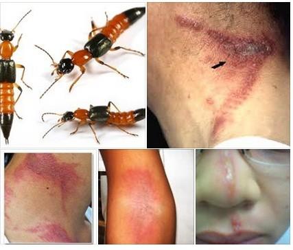Bicho de Fuego: Salud advierte sobre la presencia de este insecto