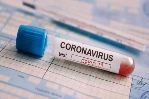 COVID-19: En las últimas 24 horas, se registraron 11.249 casos en el pais.